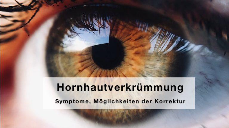 Hornhautverkrümmung – Symptome, Möglichkeiten der Korrektur, Tipps